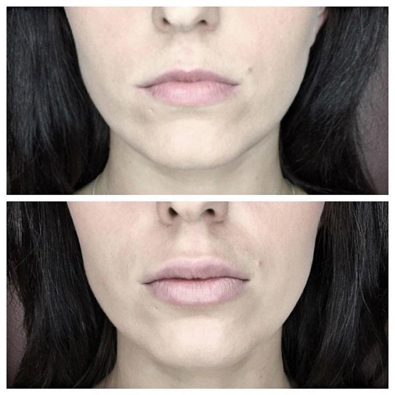 korekcja i powiększanie konturu oraz objętości ust