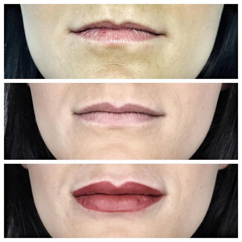 Powiększanie i korekta ust kwasem hialuronowym