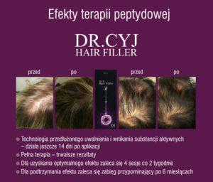 dr-cyj-efekty-dermatologiabielsko