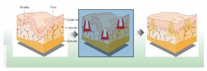 odnawianie skóry