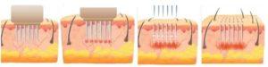 Radiofrekwencja (RF) Mikroigłowa