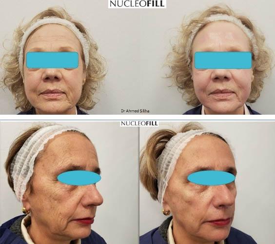 NUCLEOFILL – lifting - przed i po zabiegu zdj02