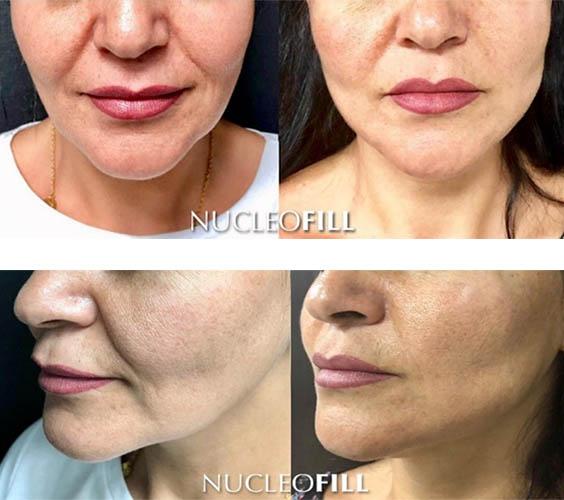 NUCLEOFILL – lifting - przed i po zabiegu zdj01